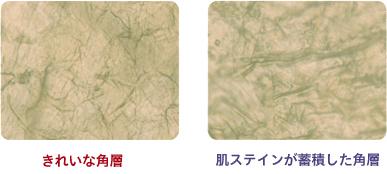 肌ステインが蓄積した角層と綺麗な角層の写真